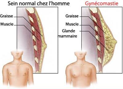 gynécomastie homme